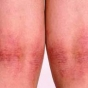 Atopic Dermatitis: Cases Challenge