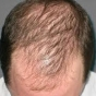 for Androgenetic alopecia 2011