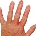 คำแนะนำสำหรับการดูแลผื่นผิวหนังอักเสบที่มือ