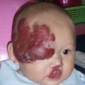 ปานแดง ชนิด hemangioma