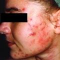 การป้องกันอันตรายจากยารักษาสิว Isotretinoin (Roaccutane)