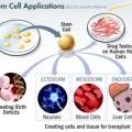 การปลูกถ่ายเซลล์ต้นกำเนิดเพื่อการรักษา