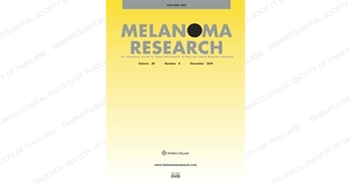 Melanoma Research